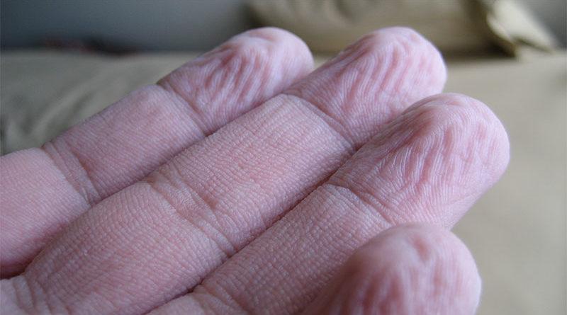 Lleva 3 semanas con los dedos arrugados tras estar 5 horas en la piscina