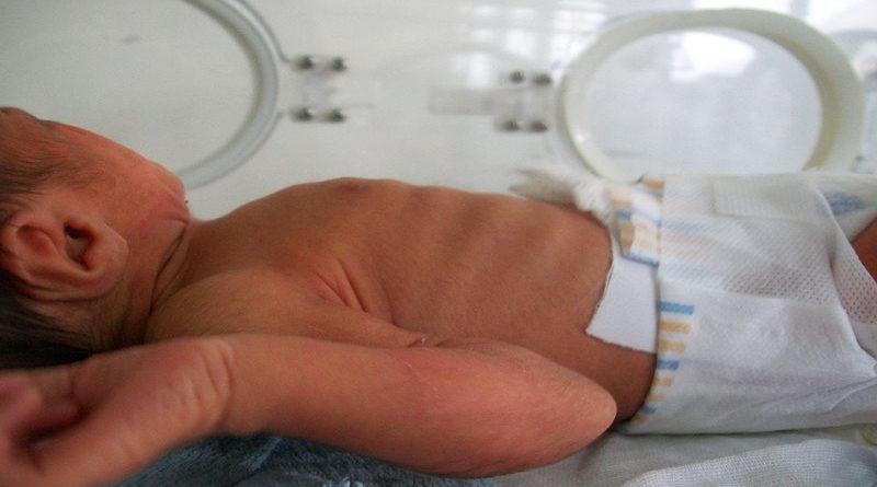 Nace un bebé con un pene de 20 cm y las enfermeras del hospital hacen cola para sacarle una foto