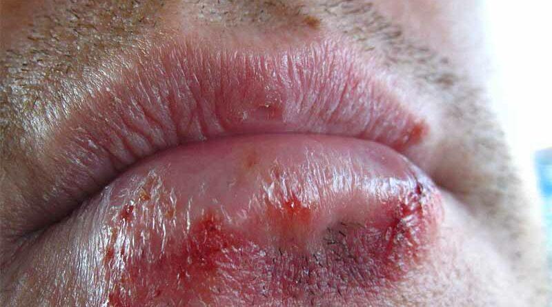 """Le detectan un herpes vaginal en la boca y le dice a su mujer que """"no sabe de que coño será"""""""