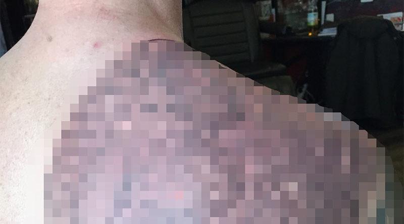 Despierta de la borrachera con los penes de sus 7 amigos tatuados en la espalda